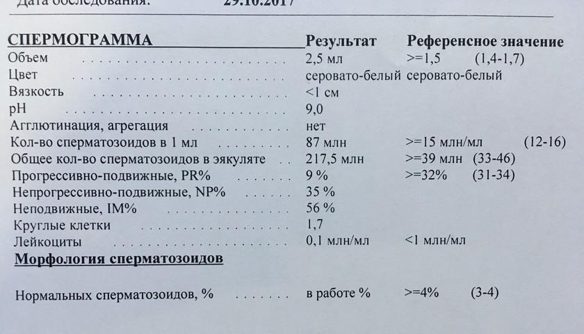agregatsiya-v-spermogramme