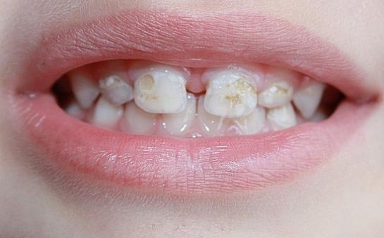 Прием антибиотиков в младенческом возрасте может привести к деминерализации эмали зубов. Статья
