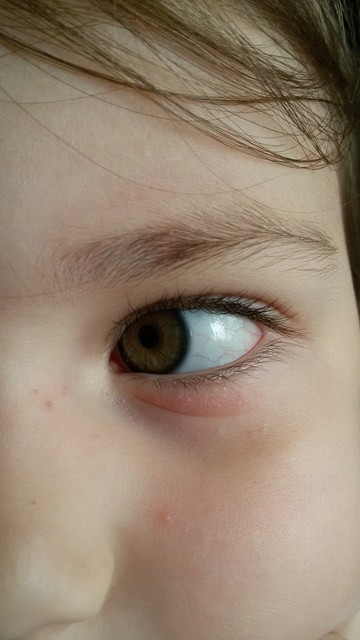 У дочки под глазом покраснело и припухло.